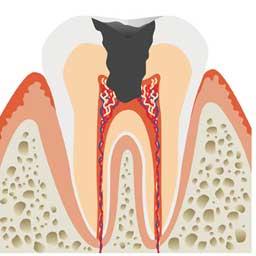 虫歯治療 武蔵小杉まつ歯科クリニック