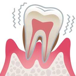 歯周病治療 武蔵小杉まつ歯科クリニック